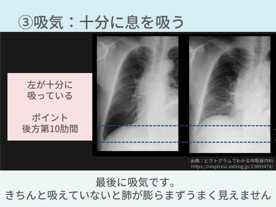 胸部レントゲン、撮影条件