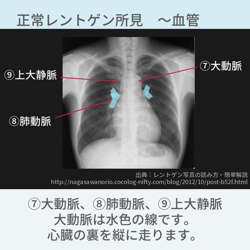 胸部レントゲン、正常所見