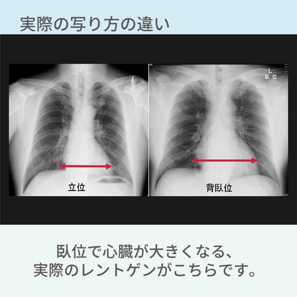 胸部レントゲン、体位