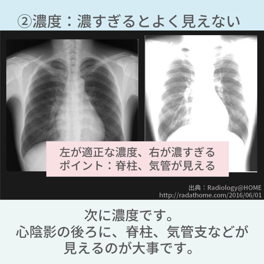 胸部レントゲン、条件