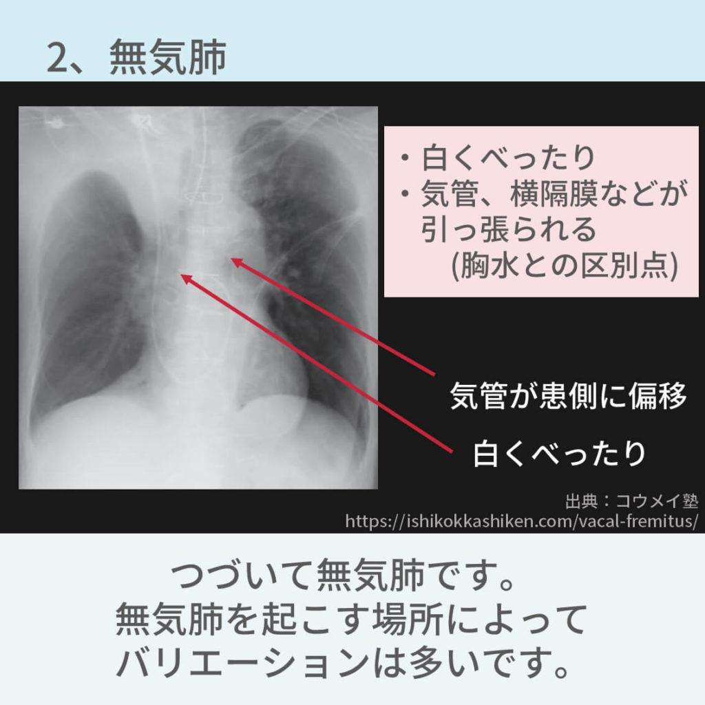 胸部レントゲン、無気肺