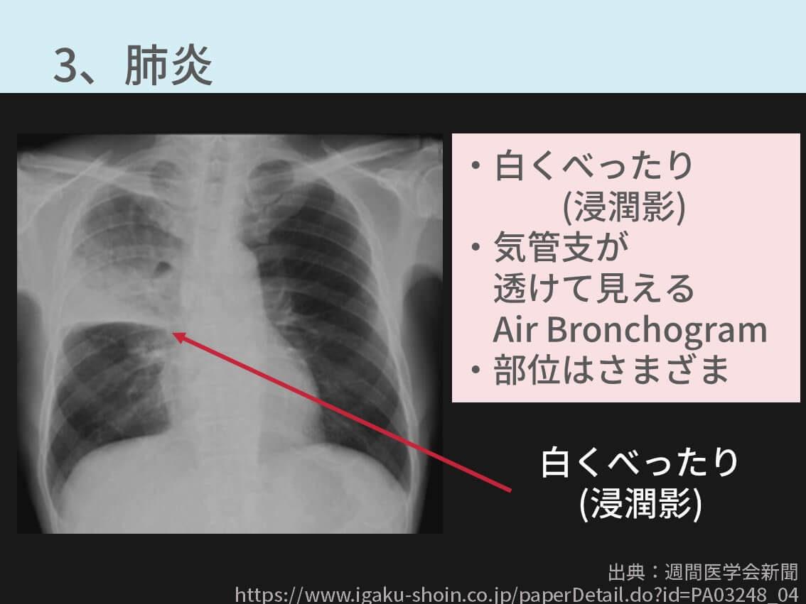 胸部レントゲン、肺炎