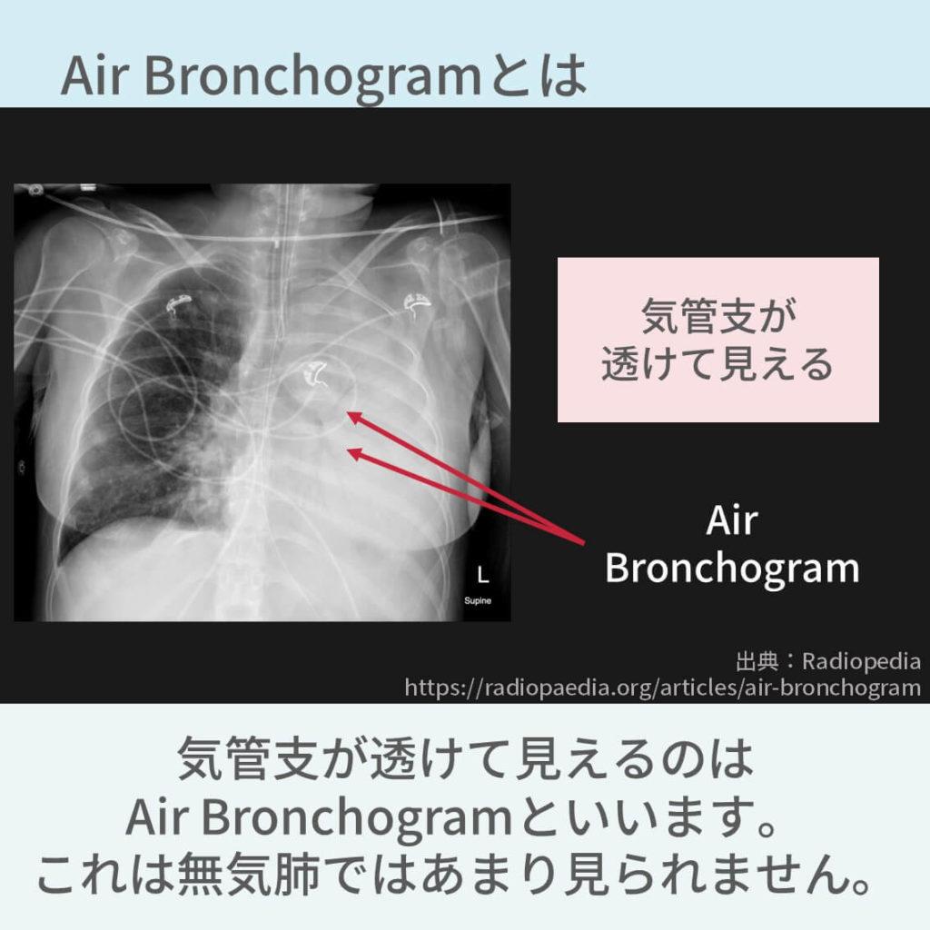 胸部レントゲン、Air Bronchogram