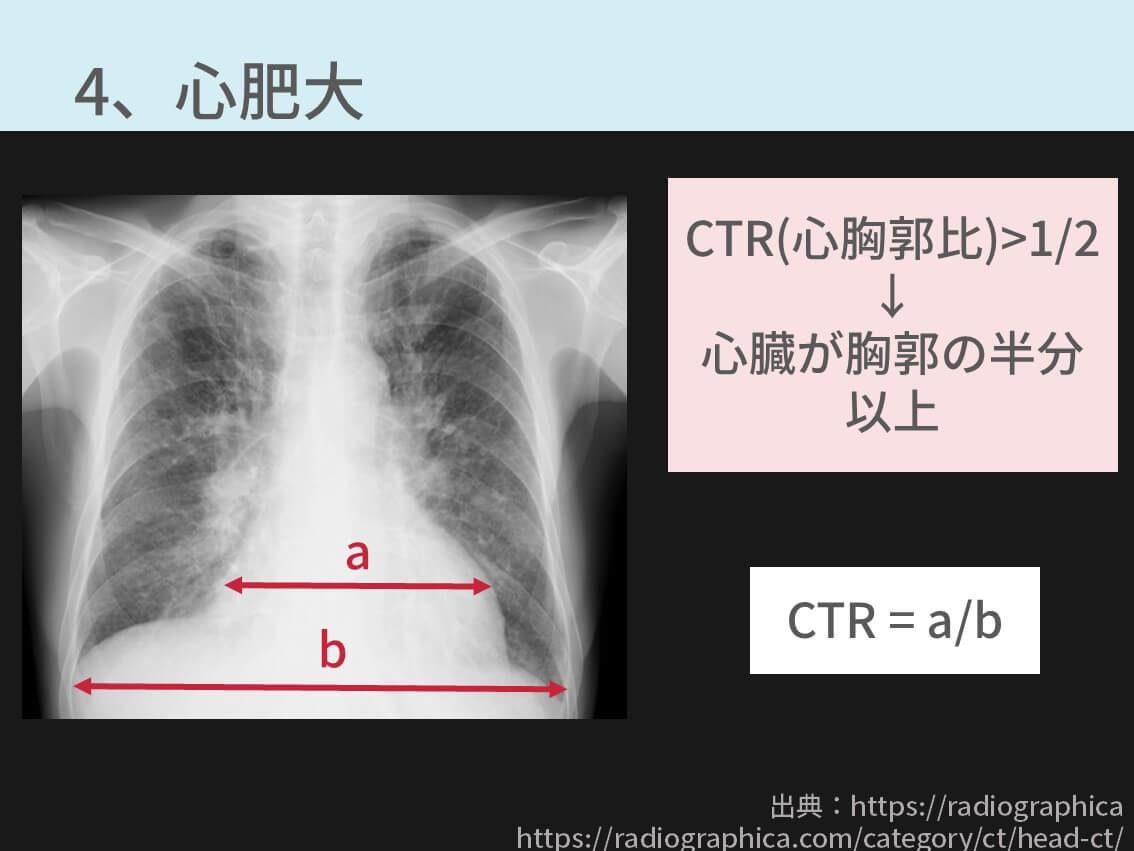 胸部レントゲン、CTR