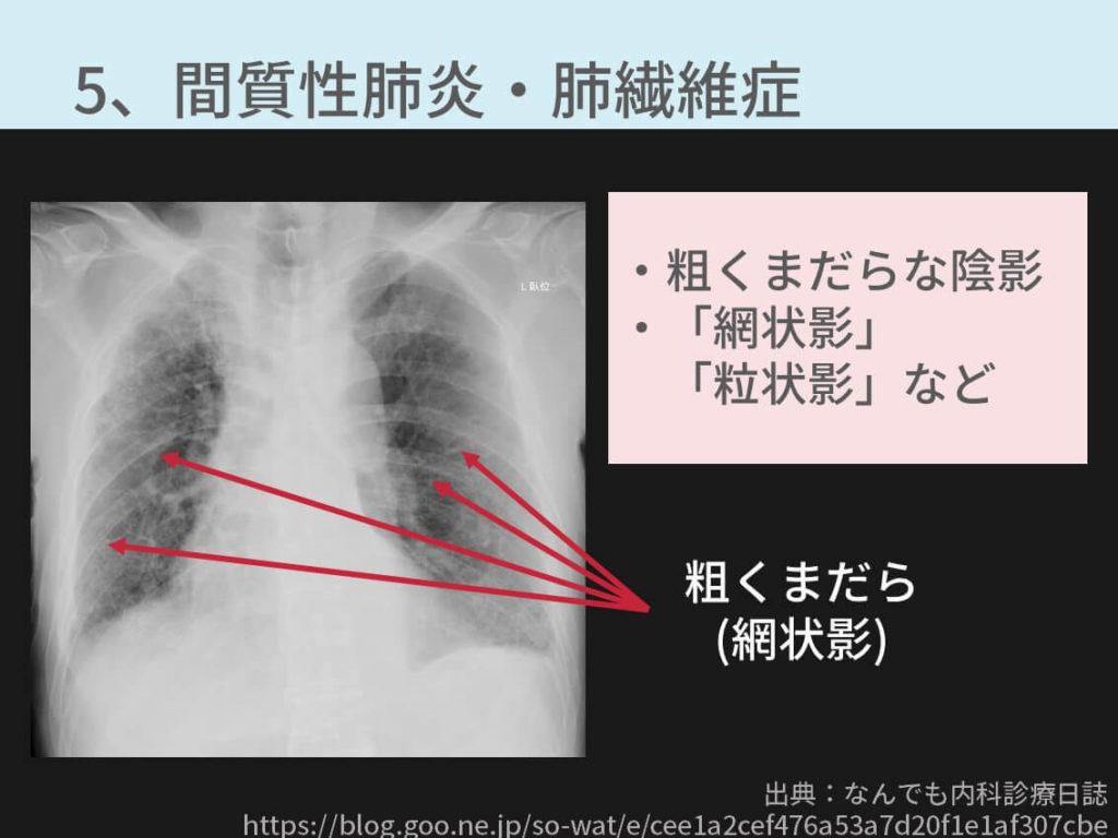 胸部間質性肺炎、