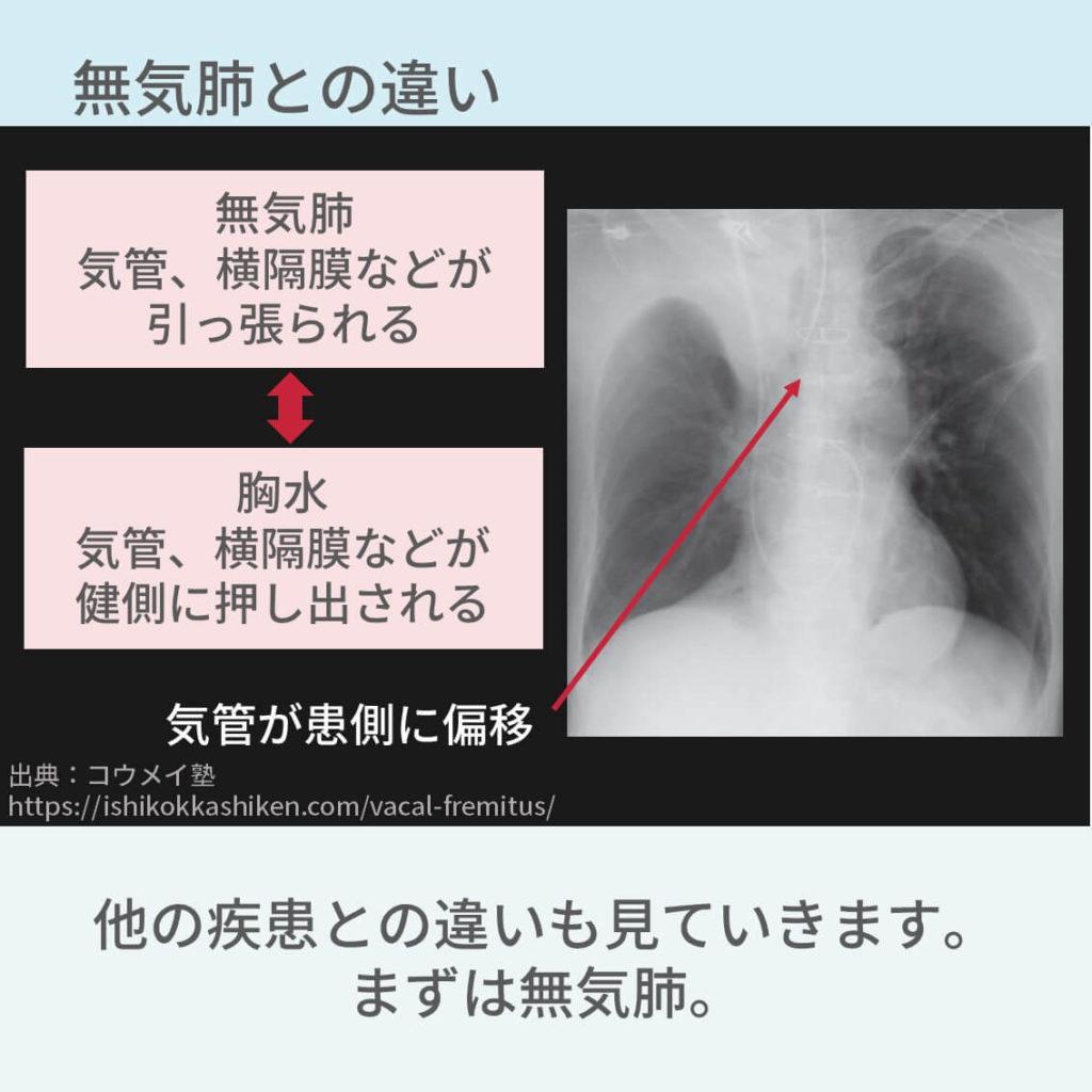 胸部レントゲン、胸水