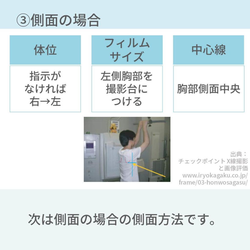 胸部レントゲン、撮影方法