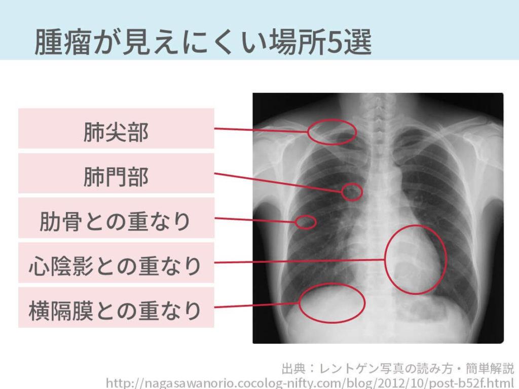 胸部レントゲン、肺癌