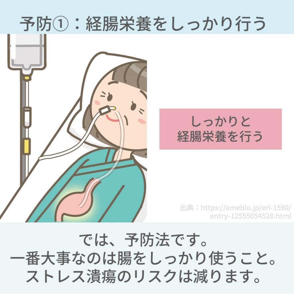 人工呼吸器、胃潰瘍、ストレス潰瘍
