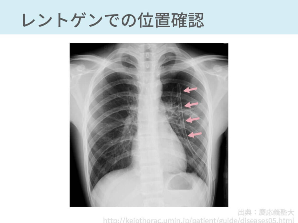 胸腔ドレナージ 手技 合併症 気胸 胸水 膿胸 血胸
