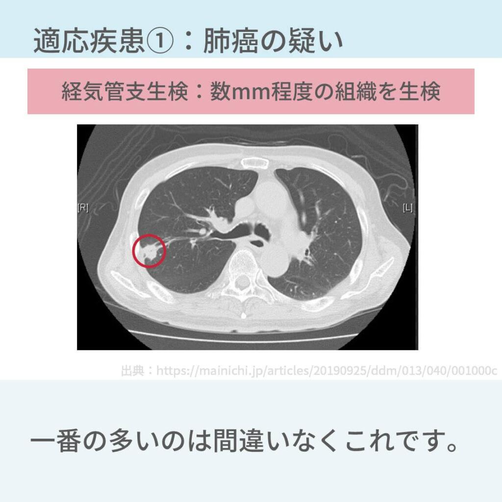 気管支鏡 適応 肺癌 間質性肺炎 結核 異物誤嚥 合併症 入院 看護手順