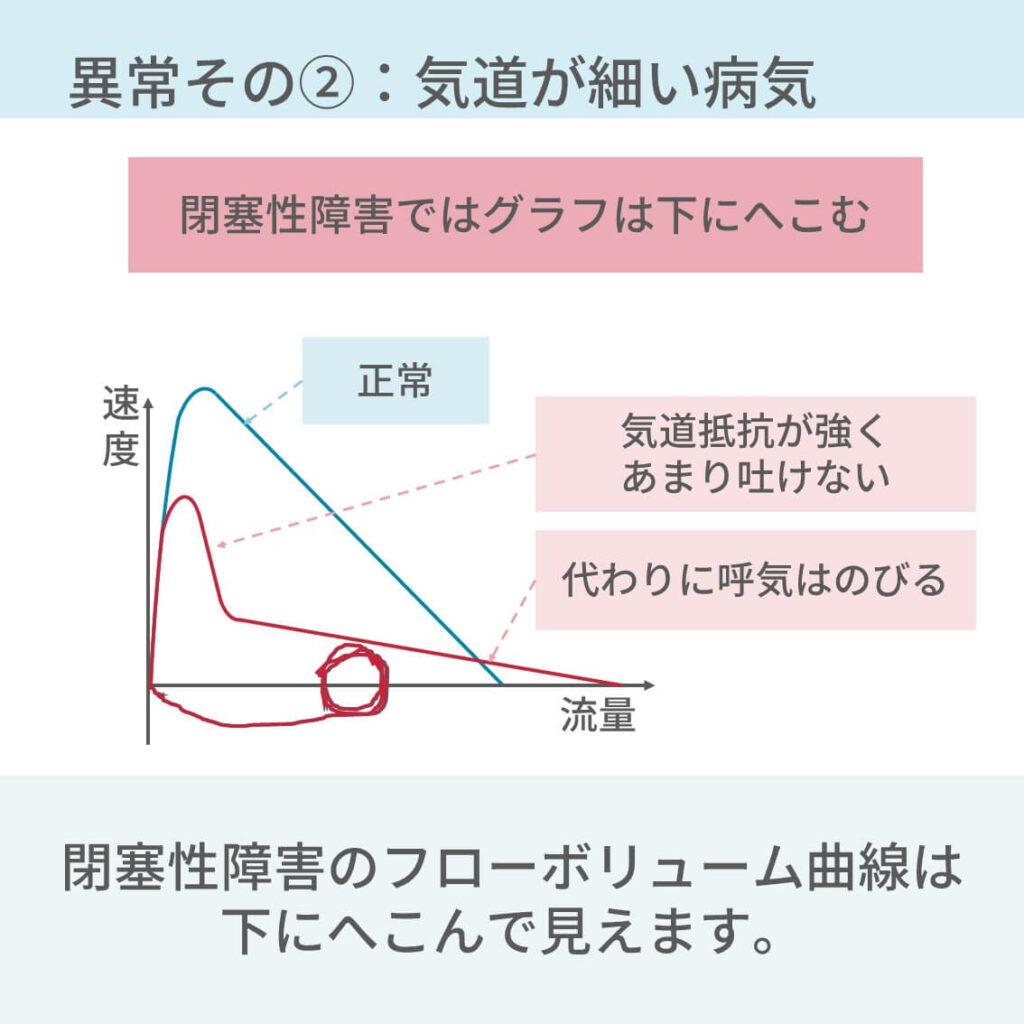 スパイロメトリー 閉塞性障害 高速性障害 コンプライアンス 気道抵抗 %VC FEV/FVC