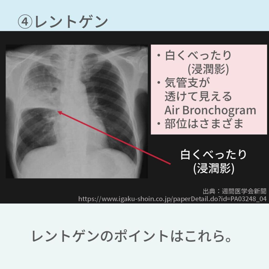肺炎 治療 診断 症状 血液検査 レントゲン CT 治療 抗菌薬 予防 入院 A-DROP