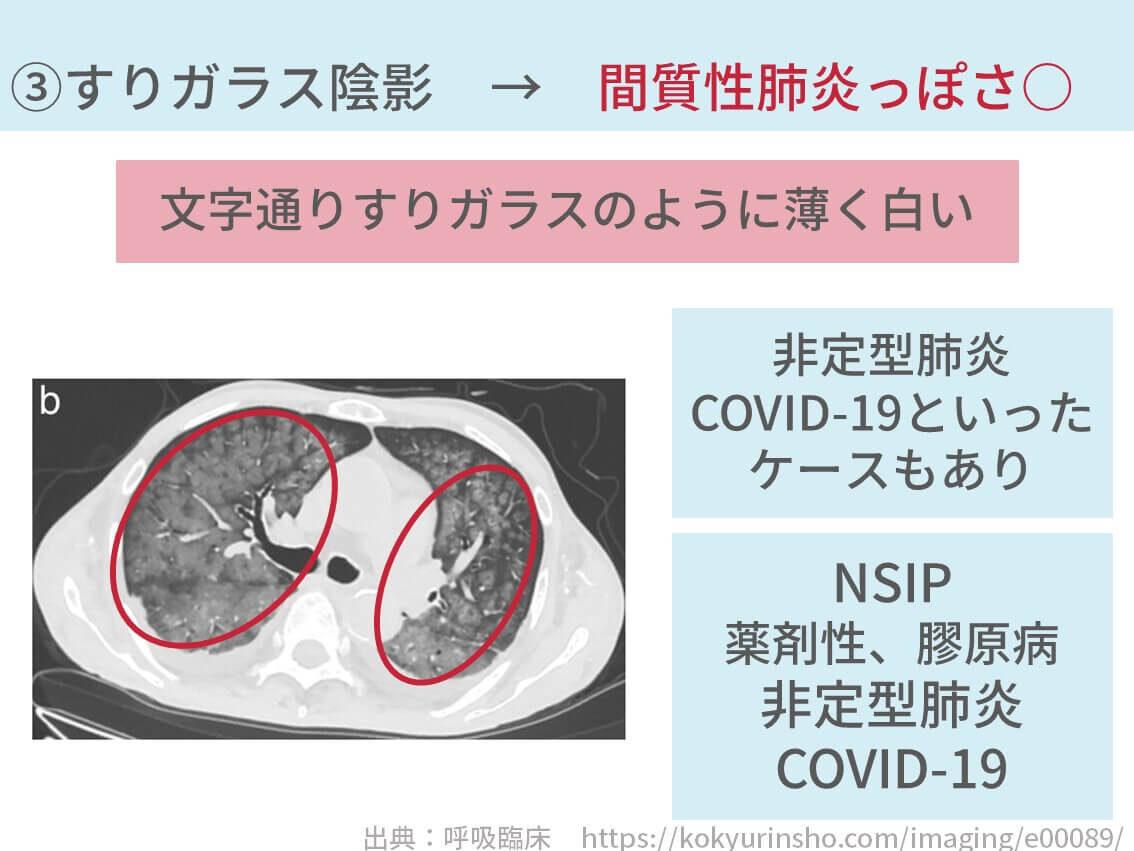 間質性肺炎 特発性肺線維症 特異性間質性肺炎 器質化肺炎 IPF NSIP COP 治療 検査 診断 身体所見 血液検査 レントゲン CT ステロイド ピレスパ オフェブ 免疫抑制剤 びまん性肺疾患