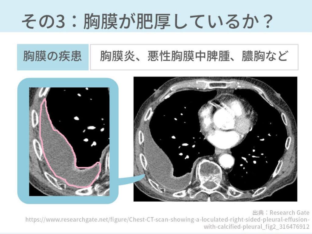 胸部CT、胸水