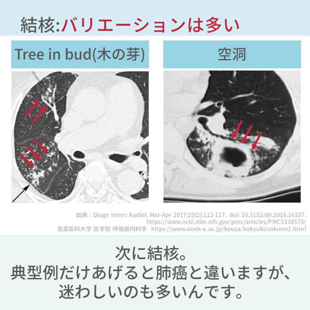 胸部CT、肺癌