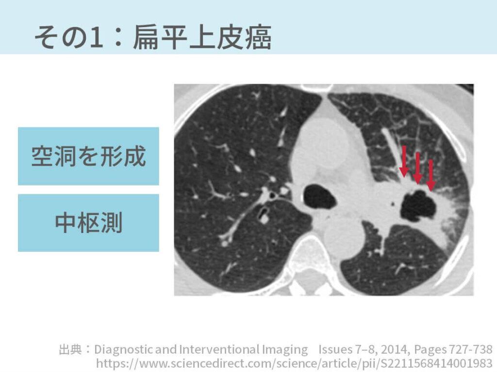 胸部CT、結核、空洞病変