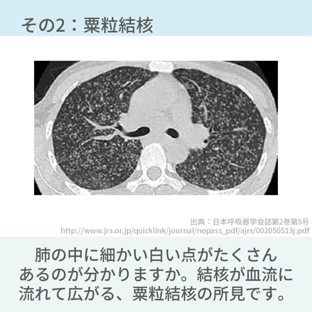 胸部CT、多発腫瘤