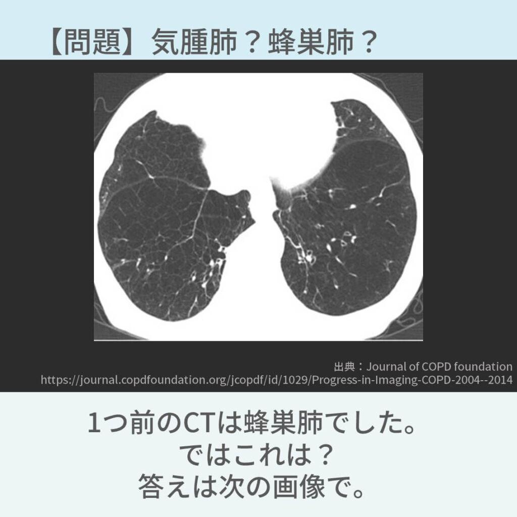 胸部CT、COPD