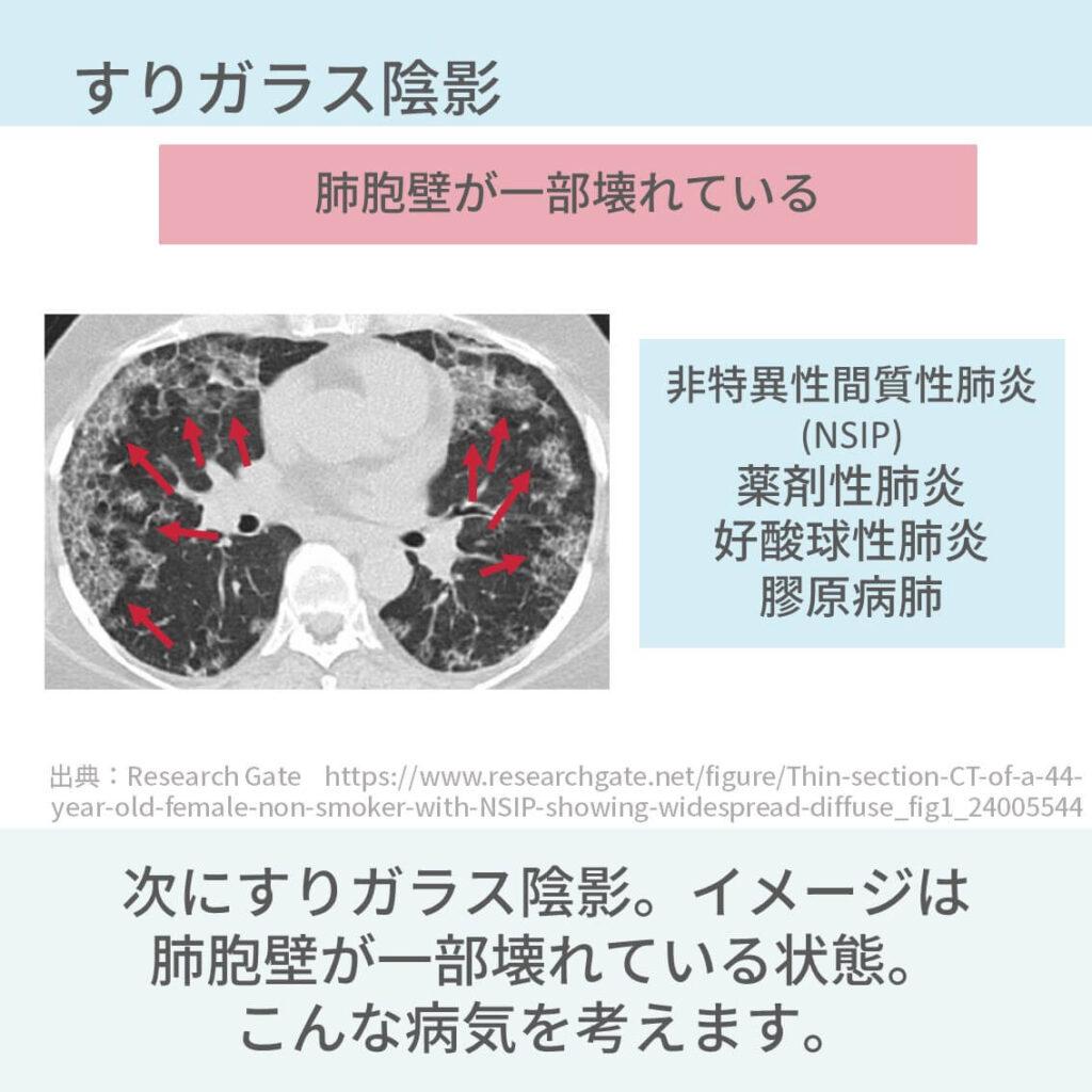 胸部CT、間質性肺炎、びまん性肺疾患