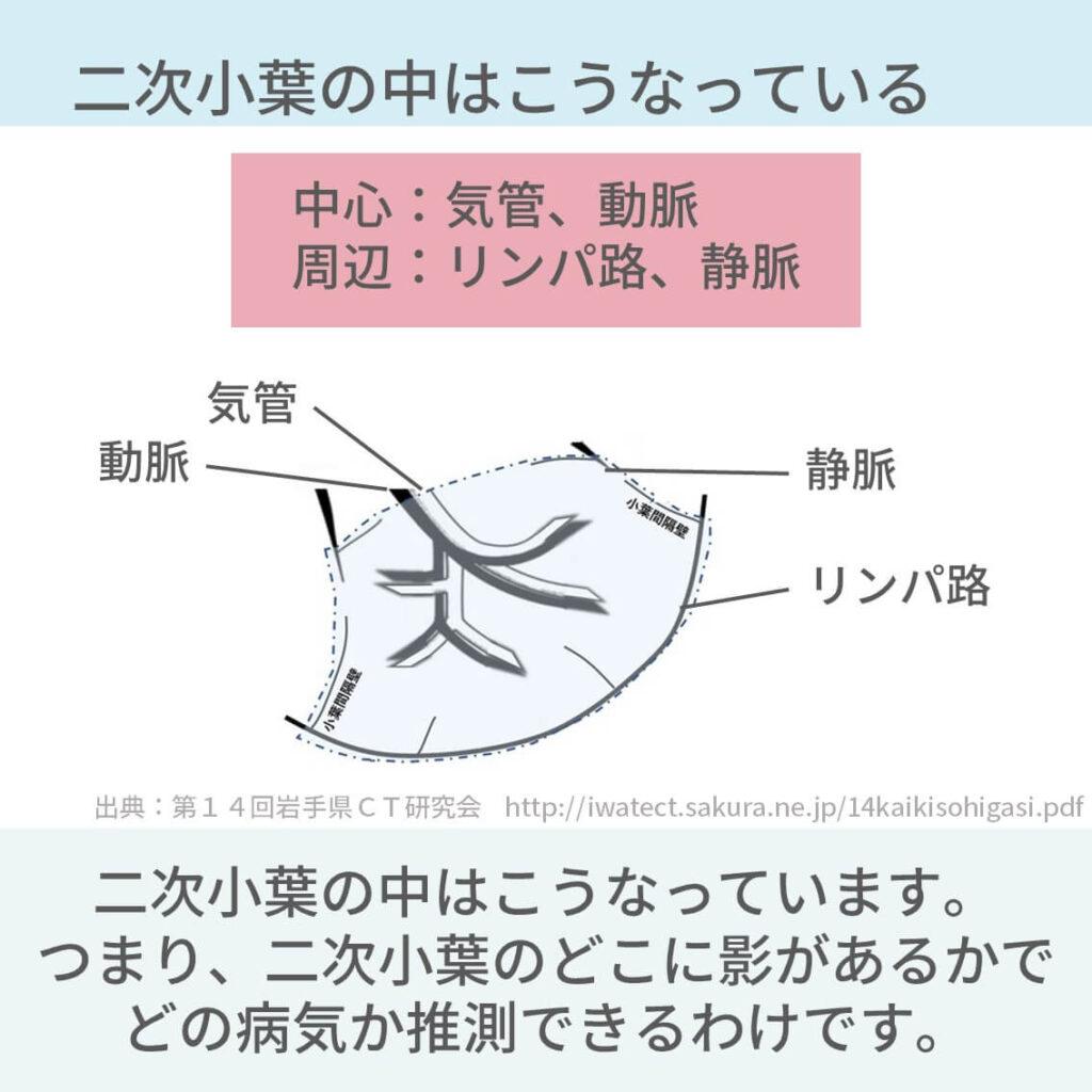 胸部CT、二次小葉、小葉中心性、小葉辺縁性、ランダム性、汎小葉性