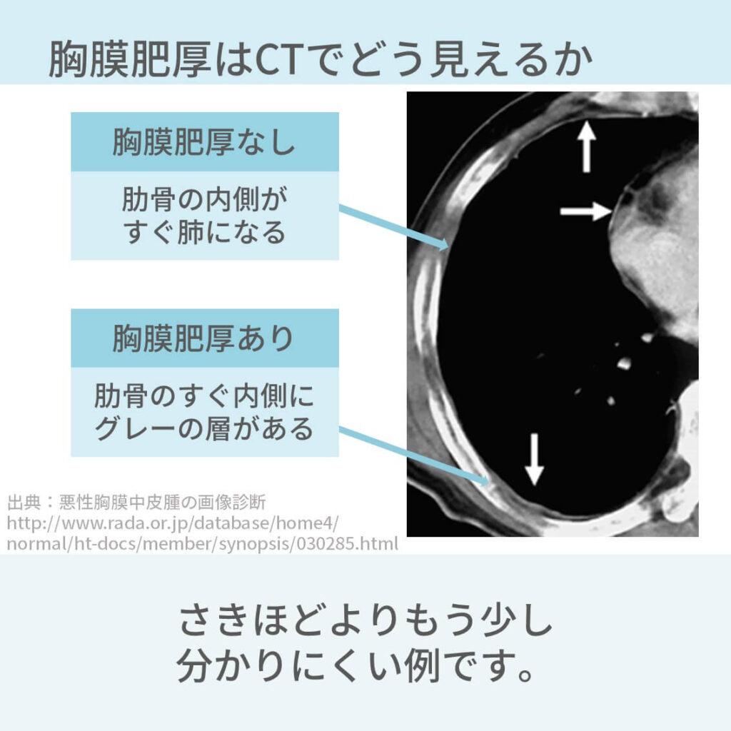 胸部CT、胸膜肥厚